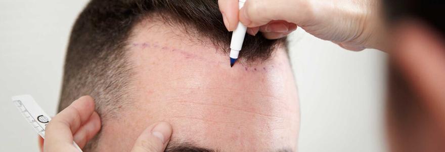 traitement capillaire